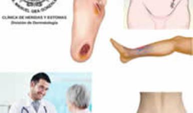 Cuidado de heridas y estomas