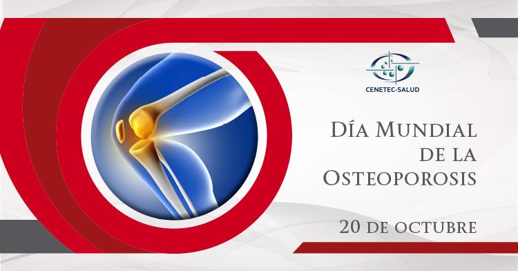 Guia de practica clinica para osteoporosis