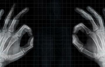 Imagen de radiografía de mano.