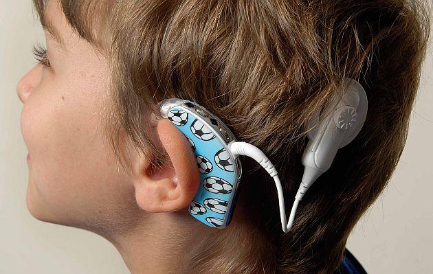 Es la cabeza de un niño con implante coclear visto de perfil