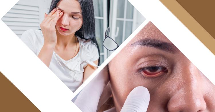 Banner que hace alusión al día mundial del glaucoma