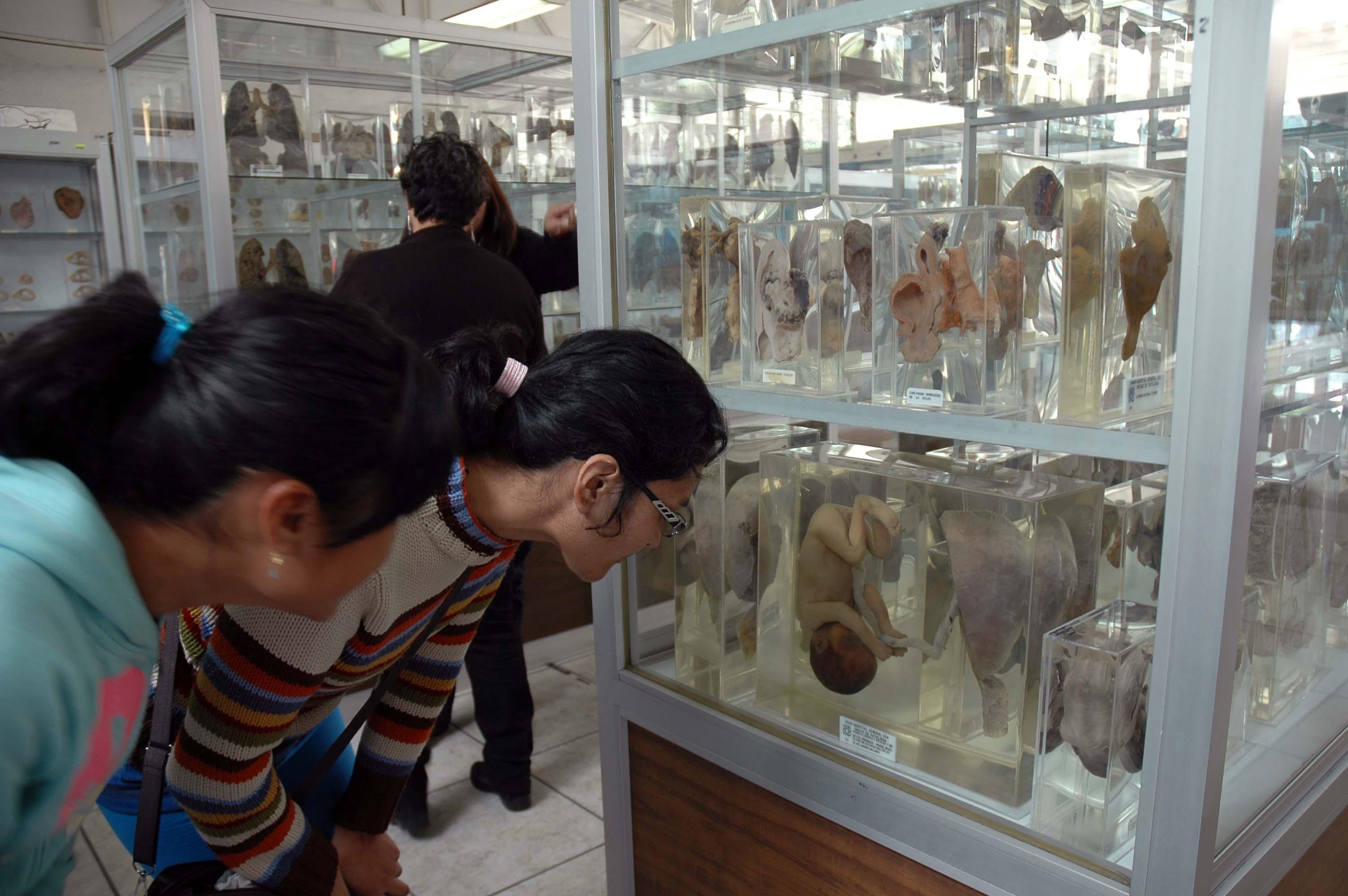 Museo de Patologia HGM 03.jpg