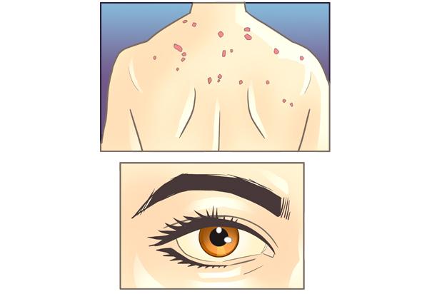 cada cuando se aplica la vacuna de hepatitis b
