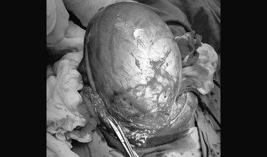 Imagen del útero expuesto en sala de quirófano.