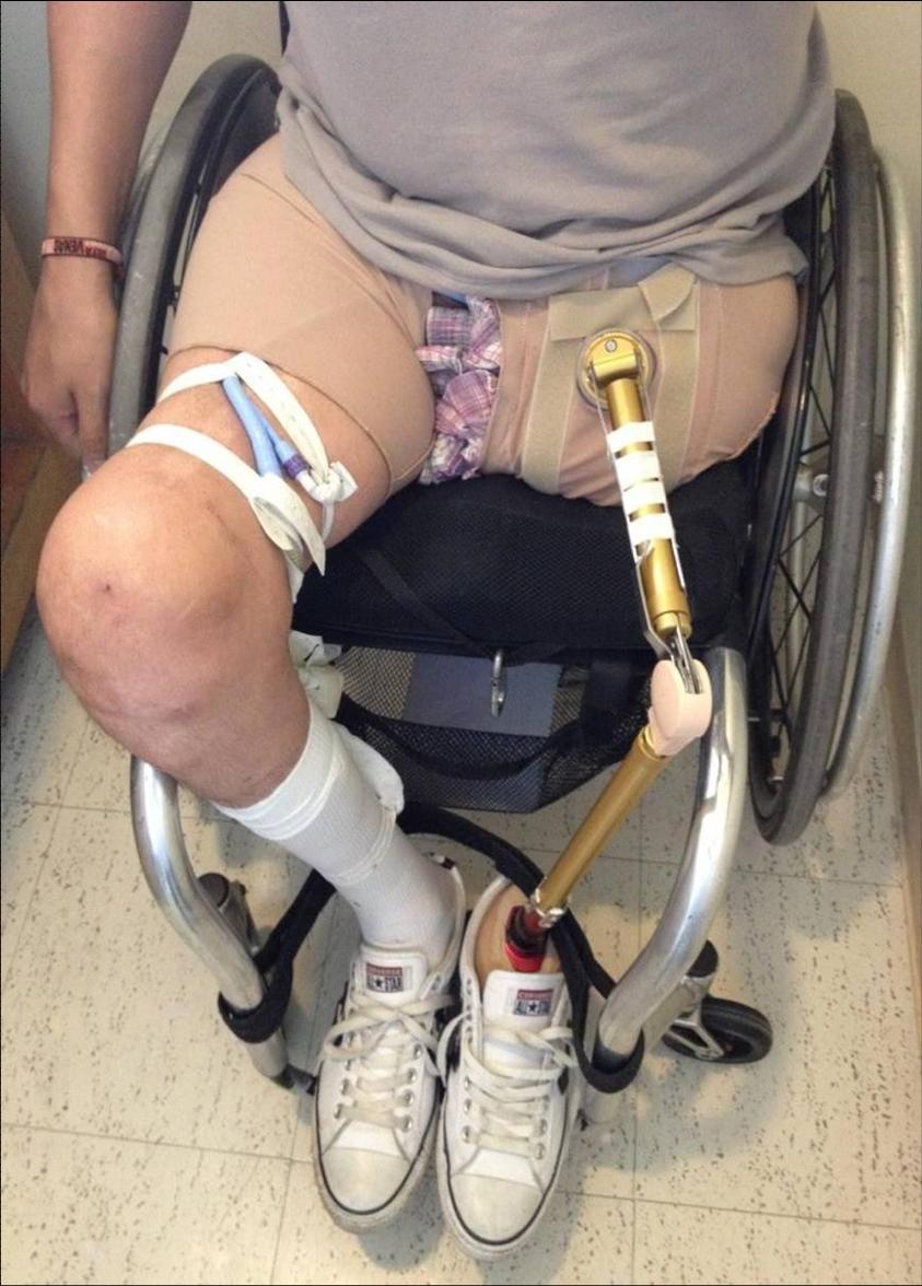 El INR fabrica la primera protesis